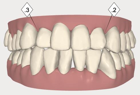 3 歯と歯の間を少し削ってスペースを作ります画像