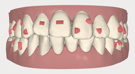 2 歯に何もつかないわけではない画像