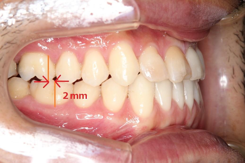 治療後奥歯側面観