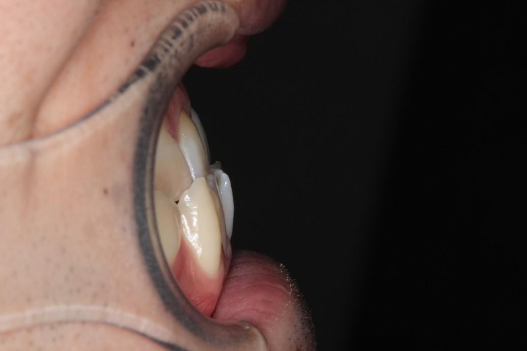 治療前前歯