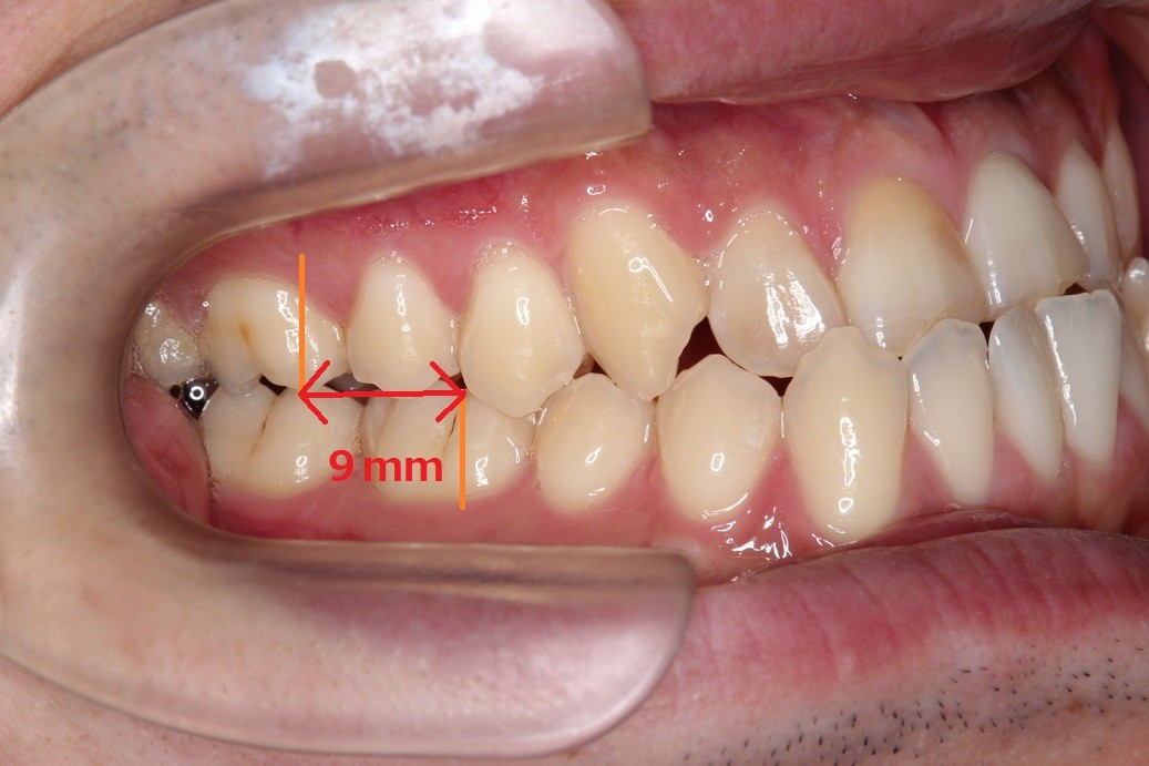 治療前奥歯側面観