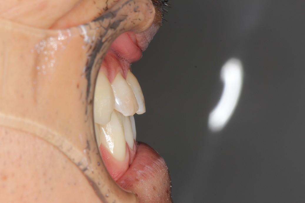 治療後前歯